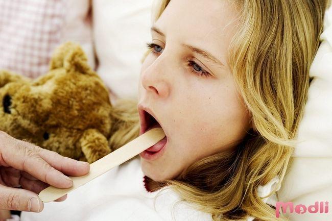 Ангина - симптомы и лечение у детей и взрослых