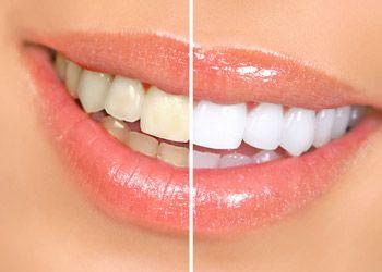 Чем и как отбелить зубы: содой, отбеливающими полосками и карандашом