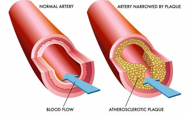 Как понизить холестерин без таблеток: чистые сосуды