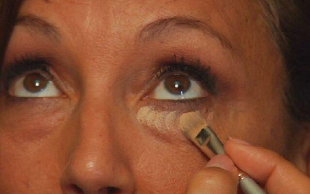 Как удалить синяки под глазами: свежесть внешнего вида