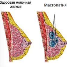Методы лечения кисты молочной железы